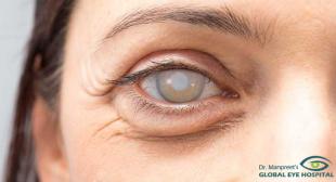 Best Eye Hospital in Patiala